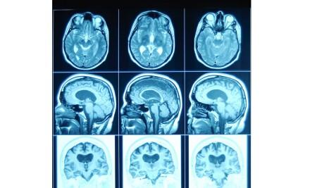 Alzheimer's Neuropathology Examination
